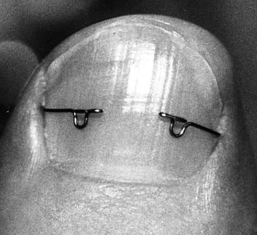 Die Kerne auf den Fingern der Beine dass es